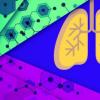 机器学习发现潜在的新结核病药物